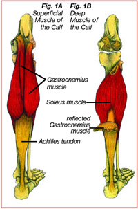 Achilles Tendinopathies in Runners: Causes, Treatment, and