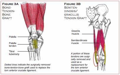 Anterior Cruciate Ligament Injury Pre And Post Operative Rehabilitation